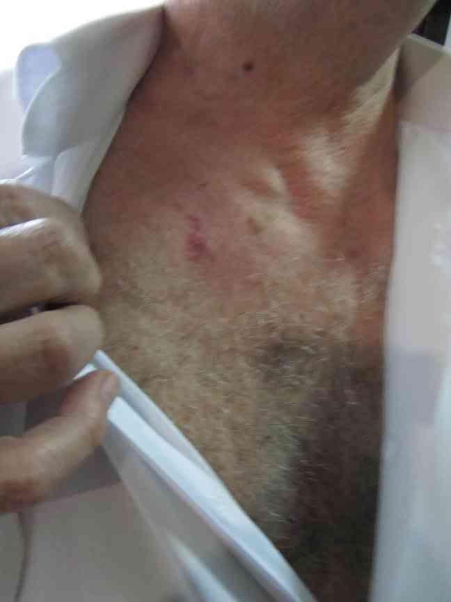 В поликлинике Павлограда врачи МСЭК  избили претендента на инвалидность