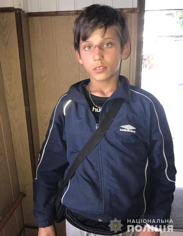 Допоможіть розшукати 12-річного хлопця, який втік з лікарні