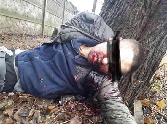 В рот 26-летнему павлоградцу убийцы вставили горящую петарду